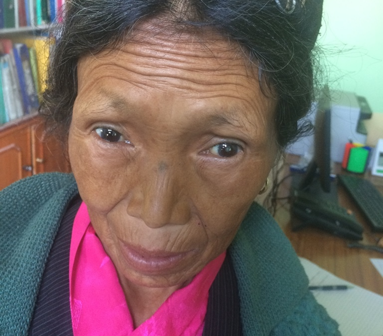 Nesum before her surgery with a visible cataract in her right eye