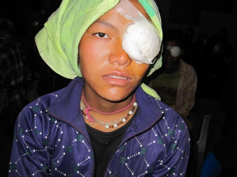 Pembi with bandage over her eye