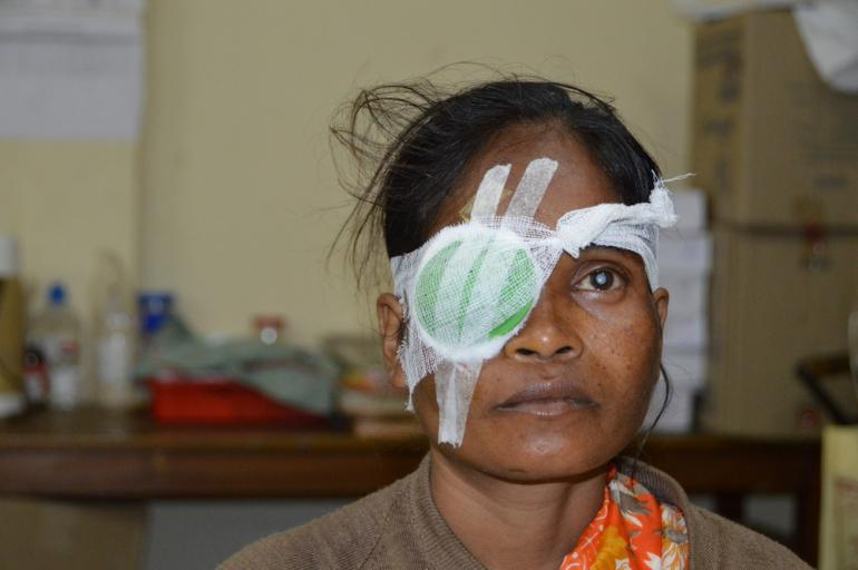 Sabitri with one eye patch