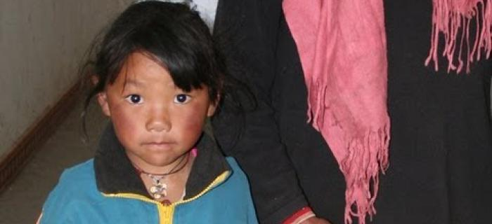 Tashi's story from Tibet: A Seva Story of the Legacy of Sight