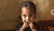 Ethiopian girl with flies in her eyes & NTD symbol