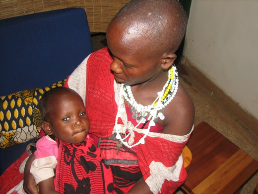 Rose, a 3-year old Masai girl with cataracts before surgery