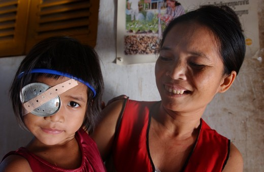Young cambodian girl with mother post-op with bandage over her right eye