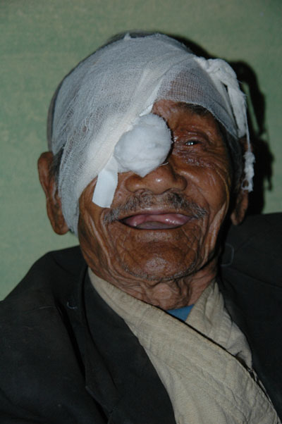 100 year old Nepali patient of Seva's